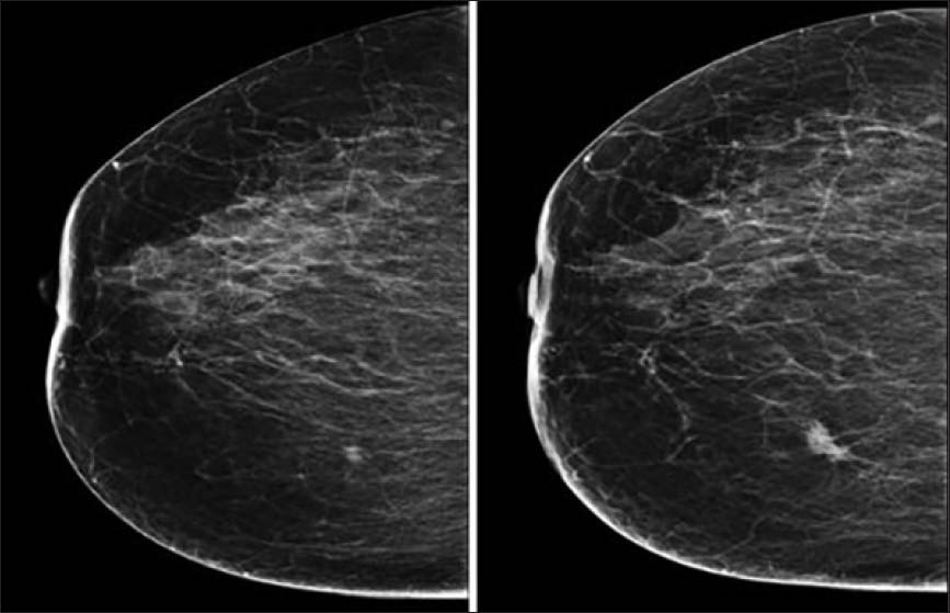 Breast Cancers Missed During Screening In A Tertiary Care Hospital