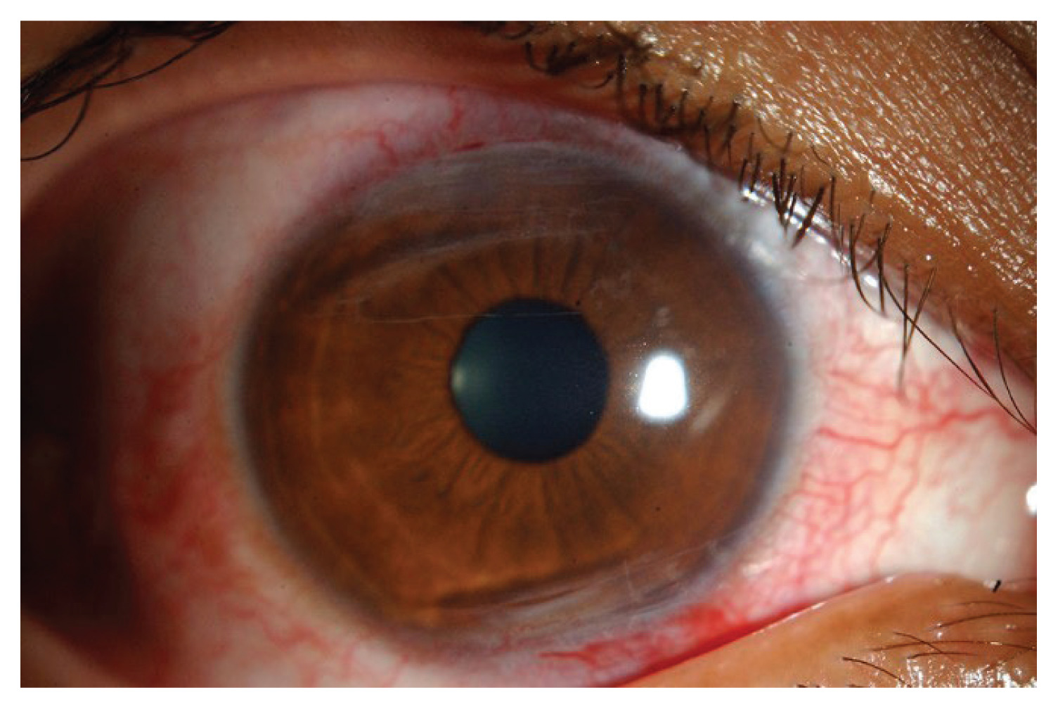 Self-inflicted eye injury | Annals of Saudi Medicine