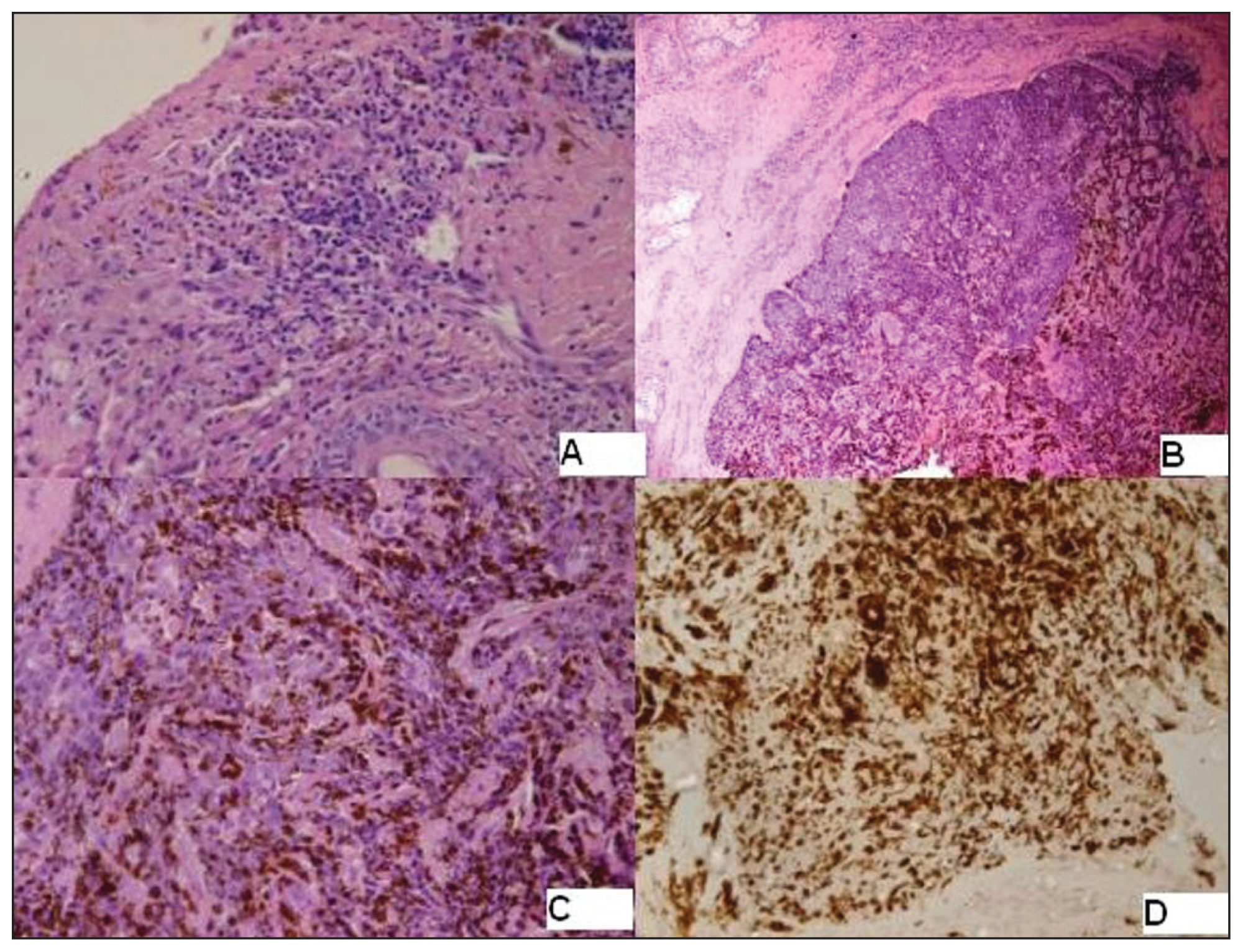 Malignant melanoma and basal cell carcinoma of the face: a rare
