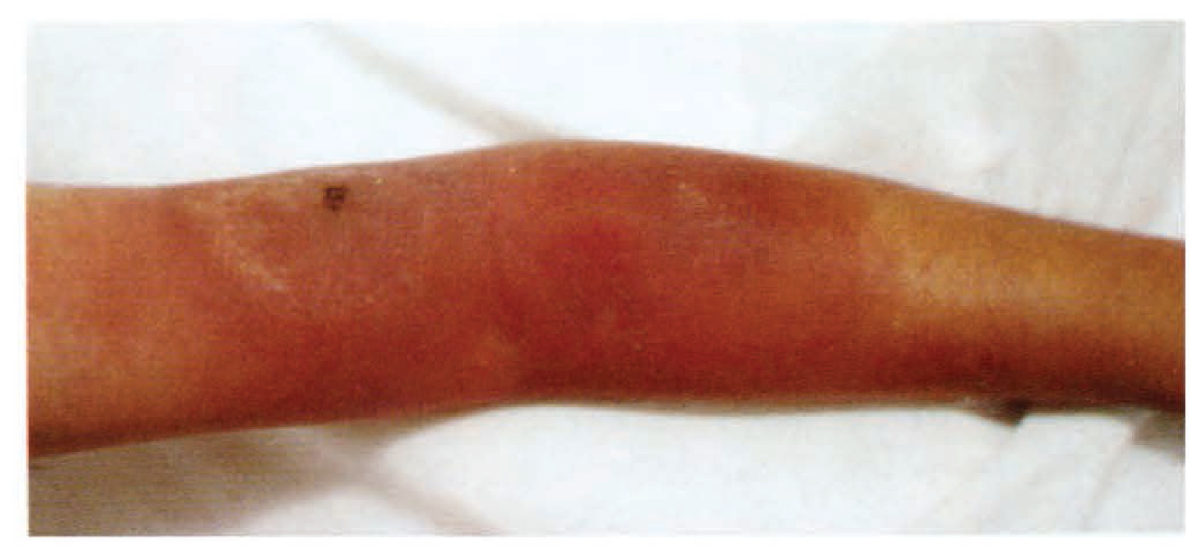 Erythema Migrans - Case Report From Dammam Central Hospital | Annals